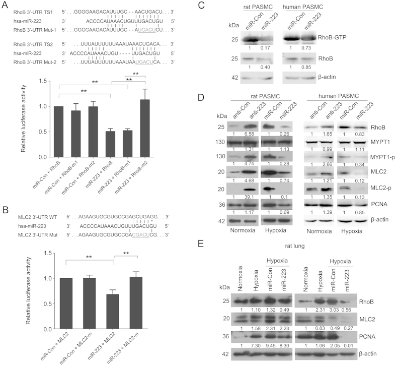 Identification of RhoB and MLC2 as direct targets of miR-223. Luciferase reporter gene assay on the interaction between miR-223 and 3′-UTR of RhoB ( A ) and MLC2 ( B ) in HEK293 cells. Upper panel: putative miR-223 binding sites in the 3′-UTR of RhoB or MLC2 along with the mutation sites. TS1,target site 1 (a pooly conserved binding site); TS2, target site 2 (a conserved binding site); Bottom panel: 3′-UTR luciferase reporter assay with targets and their mutant along with miR-223/miR-Con overexpressing vectors. Bar charts of luciferase reporter analysis represent means ± SE (n = 3), firefly luciferase activity was normalized to renilla luciferase activity. ( C ) Active RhoB proteins in miR-223 or miRNA control overexpressing PASMC were pulled down by rhotekin-RBD beads and detected by western blotting analysis using anti-RhoB antibody (n = 3). ( D ) Expression of RhoB/Rho-kinase signaling pathway related components in PASMC, with overexpression or inhibition of miR-223, was measured by western blotting (n = 3). ( E ) Expression of RhoB, MLC2 and PCNA in lungs of hypoxia-exposed rats administered agomirs miR-223/miR-Con was determined by western blotting (n = 3). β-actin was used as a loading control for the above western blot analysis. Two representative blots are shown. * p