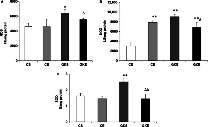 Effect of exercise on reactive oxygen species ( ROS ) production and SOD : The pancreas was homogenized and cellular fractions were prepared from control and Goto‐Kakizaki ( GK ) sedentary and exercise‐trained rats as described in the Materials and Methods. ROS (A) was measured by Dichlorofluorescein diacetate ‐ ROS fluorescence using 2′, 7′‐ DCDF fluorescence assay and NADPH oxidase ( NOX ) activity (B) was measured using the lucigenin‐enhanced chemiluminescence method using the Turner Designs TD ‐20/20 luminometer as described before. SOD (C) was measured as percent conversion of NBT to NBT ‐diformazan according to the vendor's protocol. The results shown are +/− SEM of three independent experiments. Asterisks indicate significant difference (* P