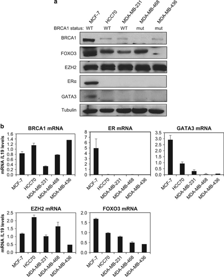 BRCA1 status correlates with FOXO3 expression in breast cancer cell lines. ( a ) Western blotting and ( b ) qRT–PCR analysis was performed on a panel of five different breast cancer cell lines including the luminal-type cell line MCF-7, which expresses wild-type BRCA1, basal-type cell lines HCC70, MDA-MB-231, MDA-MB-468 and MDA-MB-436, expressing either low or mutated BRCA1. ( a ) The expression of BRCA1, FOXO3, EZH2, ERα, GATA3 and Tubulin was examined by western blotting. ( b ) The experiments were repeated three times independently and qRT–PCR results were normalized against L19 mRNA levels and the results presented as bars representing mean±s.d.