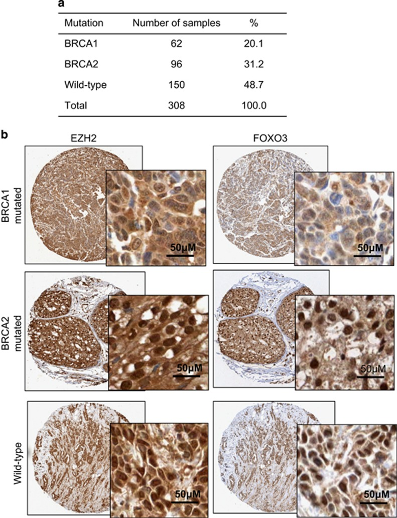 Immunostaining pattern of FOXO3 expression in breast cancers with different BRCA mutation status. ( a ) BRCA mutation makeup of tissue microarray constructed from 308 cases of Korean breast cancer samples. ( b ) Representative staining images of FOXO3 and <t>EZH2</t> immunohistochemical staining of BRCA1-mutated, BRCA2-mutated or wild-type breast cancer samples. Images (original magnification, × 20); insets (original magnification, × 100).
