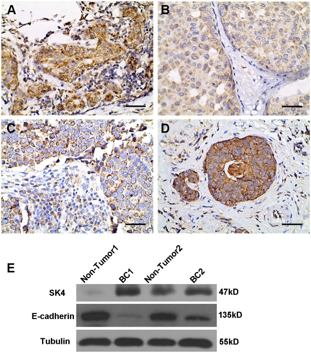SK4 proteins expressed in breast cancer tissue. (A-D) SK4 IHC in fours subtypes of breast cancer tissues including Luminal A (A), Luminal B (B), HER2 (C), and TNBC (D). Scale bars, 50 μm. (E) Immunoblotting of SK4 and E-cadherin in breast cancer tissues (BC1 and BC2) and non-tumor breast tissues (Non-Tumor1 and Non-Tumor2).