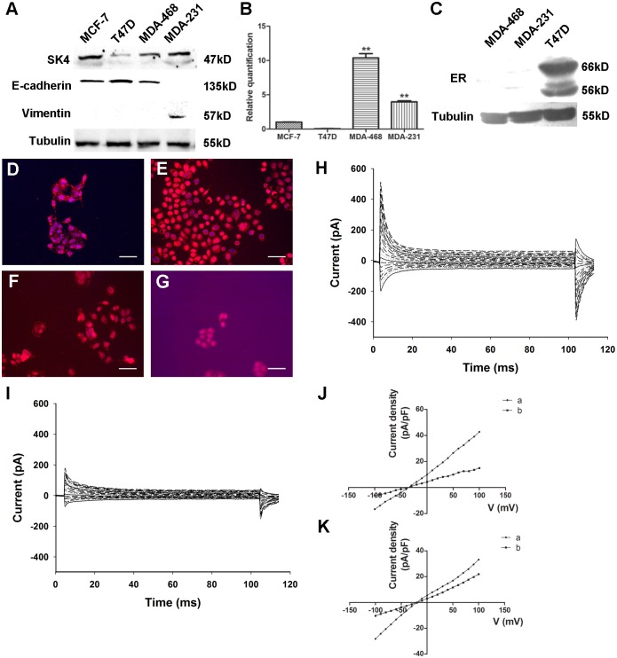 Functional expression of SK4 channels in breast cancer cells. (A) Immunoblotting of SK4 and EMT-related proteins (E-cadherin and Vimentin) in breast cancer cell lines. (B) Comparison of SK4 mRNA expression in 4 breast cancer cell lines as determined by real-time PCR; n = 3. (C) Immunoblotting of ER protein in MDA-MB-468, MDA-MB-231 and T47D cells. (D-G) Immunostaining of SK4 (red) and nuclear marker DAPI (blue) in MDA-MB-231 (D), MDA-MB-468 (E), MCF-7 (F) and T47D (G) cells. Scale bars, 50 μm. (H, I) Whole-cell recording of MDA-MB-231 cells before (H) and after (I) 5-μM TRAM-34 treatment. (J, K) With (J) or without (K) 350 nM free Ca 2+ in the pipette solution, the voltage-current density curves show the currents changes before (a) and after (b) TRAM-34 treatment. The currents were evoked by step voltage ranging from -100 mV to +100 mV in steps of 10 mV every 100 ms. Dunnett's Multiple Comparison Test was applied in comparison, ** p