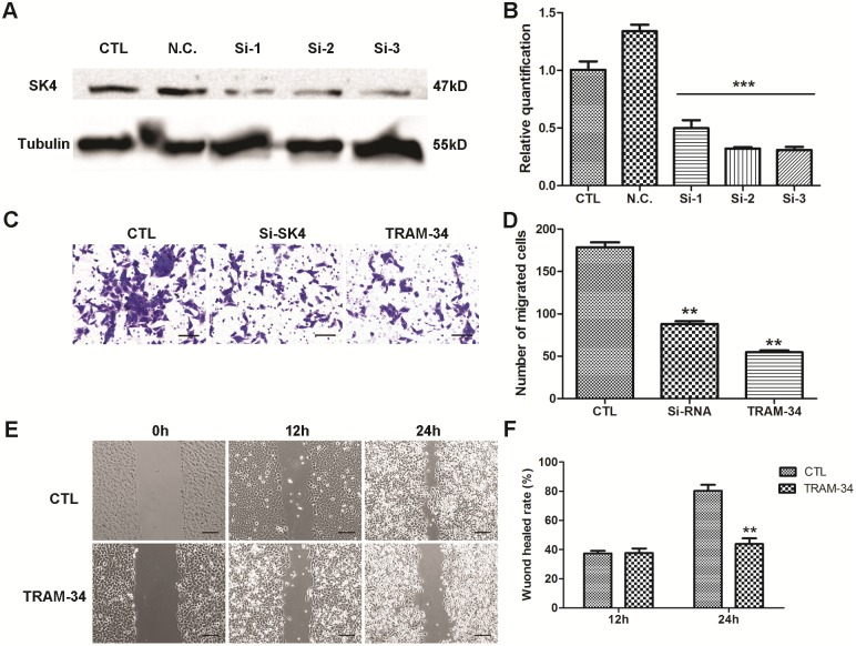 Down-regulation of SK4 channels inhibits the migration of MDA-MB-231 cells. A negative control siRNA (N.C.) and 3 SK4-specific siRNAs (Si-1, Si-2 and Si-3) were transfected into MDA-MB-231 cells, and 20 μM TRAM-34 was added to the TRAM-34-treated group to inhibit SK4 channels. (A, B) Knockdown of SK4 by siRNA was confirmed using immunoblotting and real-time PCR; n = 3. (C, D) The images and bar of the transwell migration assay indicate that the counts of migrated cells in SK4 siRNA (Si-SK4)- and TRAM-34-treated group were significantly less than those of the control (CTL). Scale bars, 50 μm; n = 4. (E, F) The images and bar of the wound-healing assay. The wound-healing rate represents the distance migrated by cells at certain time divided by the wound distance at 0 h. Scale bars, 100 μm; n = 3. The data are presented as the mean ± SD, Dunnett's Multiple Comparison Test was applied in (B) and (D), and unpaired t test in (F). ** p