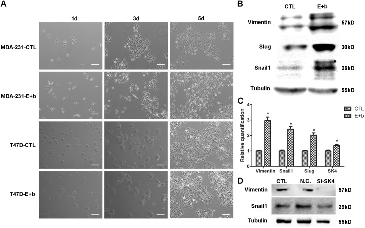 The EGF/bFGF-induced EMT of MDA-MB-231 cells correlates with SK4 channels. (A) Phase contrast images of MDA-231 and T47D cells treated with (E+b) or without (CTL) EGF/bFGF for 1 day, 3 days and 5 days. Scale bars, 100 μm. (B, C) The EGF/bFGF-induced EMT of MDA-231 cells was confirmed using immunoblotting and real-time PCR of EMT markers (Vimentin, Snail1 and Slug), and the SK4 mRNA level increased after EMT. (D) Immunoblotting of EMT-related proteins (Vimentin and Snail1) was performed 72 h after MDA-231 cells were transfected with negative control siRNA (N.C.) or SK4-specific siRNA (Si-SK4); cells that did not undergo transfection served as a control (CTL). The data are presented as the mean ± SD, and paired t test was applied in comparison. n = 3; * p