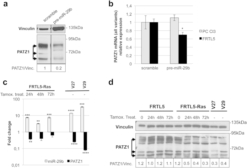 miR-29b targeting of PATZ1 in rat thyroid cells. ( a ) Western blot using anti-PATZ1 on PC Cl3 total extracts previously transfected with synthetic miR-29b precursor or scramble oligonucleotide. Three major specific bands were observed (arrows). Vinculin was used for normalization. Densitometric analysis by Image J software was applied on the gel: Relative expression levels of PATZ1, compared to scramble-transfected control and normalized with respect to vinculin, are indicated on the bottom. Black lines delineate the boundary between not contiguous lanes of the same gel. ( b ) qRT-PCR on total RNA from PC Cl3 and FRTL-5 cells previously transfected with synthetic miR-29b precursor or scramble oligonucleotide. PATZ1 mRNA levels were normalized for endogenous G6PD levels. The mean ± SE of three independent experiments performed in duplicate for each cell line is reported. *P