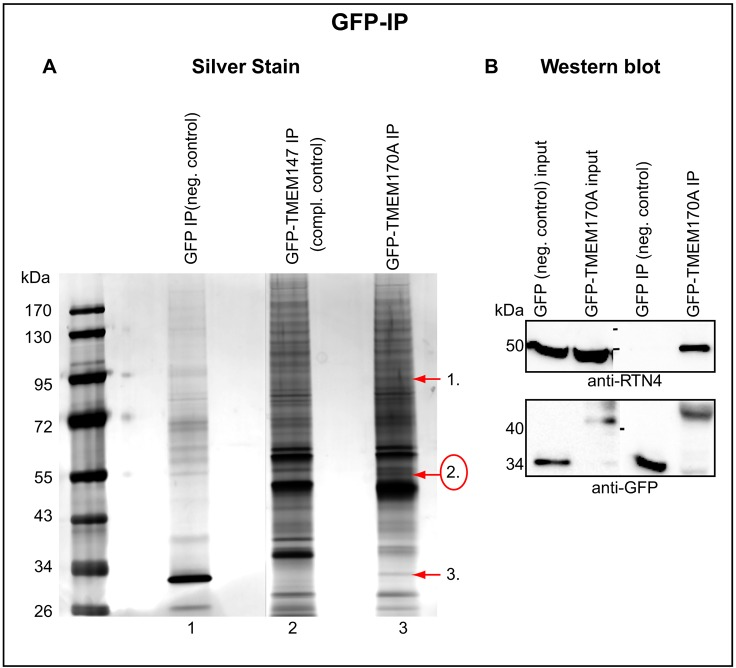 TMEM170A interacts with RTN4. (A) Silver-stained SDS-PAGE gel showing GFP (line 1), GFP–TMEM147 (line 2) control IPs and TMEM170A–GFP IP (line 3) with the use of GFP-Trap_A beads. Three bands, uniquely present in TMEM170A–GFP IP (arrows), were isolated and identified by liquid chromatography coupled with tandem mass spectrometry ( Table S1 ). Band 2 (circled in red) was RTN4. (B) The anti-GFP IP was repeated and the interaction between TMEM170A and RTN4 was confirmed by western blot, using anti-GFP and anti-RTN4/NogoA+B antibodies. 'Input' corresponds to 1/40 volume of the lysate used for the reaction and 'IP' is 1/2 of the bound fraction, i.e. the protein complexes captured on the beads.