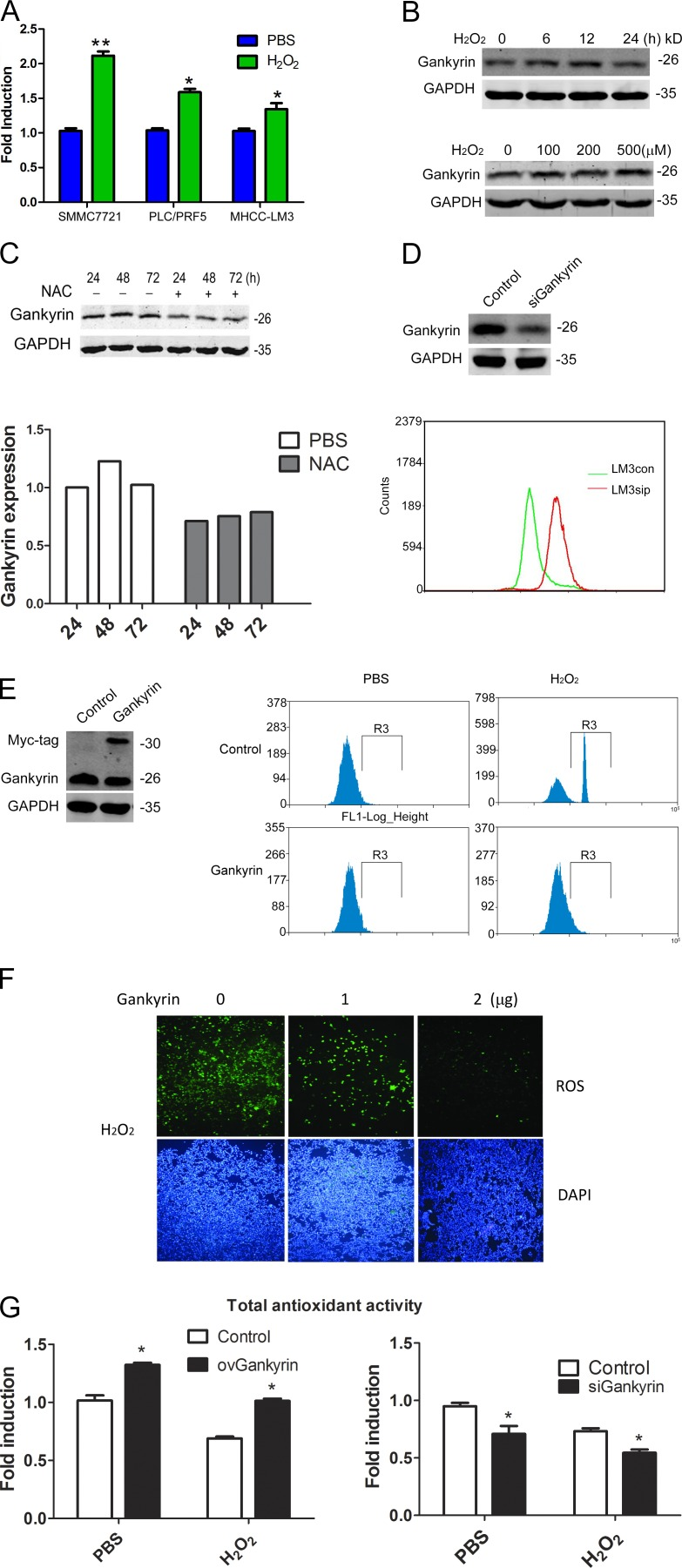 Gankyrin expression is increased under oxidative stress and participated in elimination of ROS . (A) qRT-PCR analysis of gankyrin expression in SMMC7721, PLC/PRF/5, and MHCCLM3 cells. The data are the mean ± SEM of three independent experiments. (B) Western blot analysis of gankyrin expression at different time points or after different concentrations of H 2 O 2 treatment in MHCCLM3 cells. (C) Western blot of gankyrin expression in MHCC-LM3 cells treated with 100 nM NAC for 24 to 72 h; the protein levels were quantified relative to the loading control. (D) ROS levels were detected in MHCCLM3 gankyrin knockdown and control cells. Cells were treated with PBS or 0.5 mM of H 2 O 2 for 5 h, and the cells were then incubated with CM-H2DCFDA for 30 min. (E) Flow cytometry analysis to detect ROS levels in gankyrin-overexpressing and control SMMC7721 cells. (F) Fluorescence microscopy to detect ROS levels in SMMC7721 cells transiently transfected with gankyrin overexpressing plasmid. Bar, 100 µm. (G) Gankyrin regulated the total antioxidant capacity of HCC cells. SMMC7721 and MHCCLM3 cells with different gankyrin levels were treated with 0.5 mM H 2 O 2 or PBS for 5 h, and the total antioxidant capacity was then measured with a T-AOC Assay kit. The results are the means ± SEM of three independent experiments. Data in B–F are representative of at least three experiments with similar results.*, P