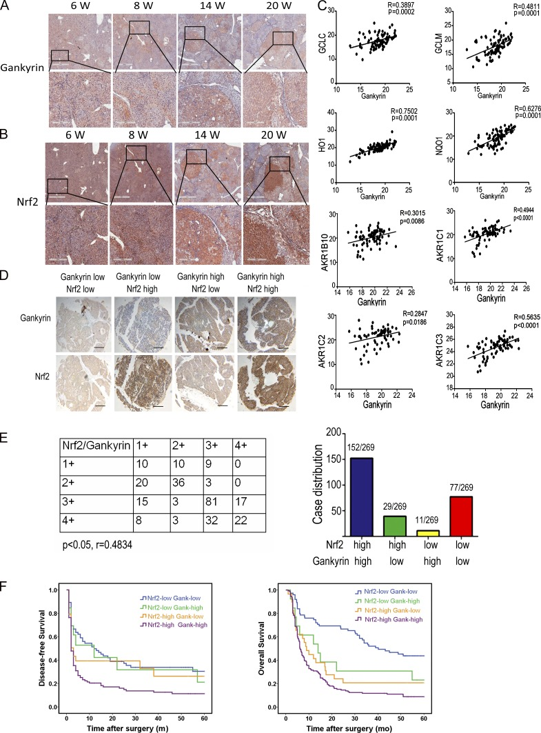 Gankyrin and Nrf2 overexpression in HCCs predicts a poor prognosis. (A and B) Livers of Wistar rats euthanized at week 6, 8, 14, or 20 wk after DEN administration were collected and subjected to immunohistochemistry with anti-gankyrin (A) and anti-Nrf2 (B) antibodies. Bars:1 mm (top), 300 µm (bottom); n = 5 for each time point. (C) Gankyrin expression positively correlated with Nrf2 target genes in HCC specimens. The levels of gankyrin and Nrf2 target genes mRNA were detected by qRT-PCR, and the correlations between the mRNA levels of gankyrin and various antioxidative enzymes were evaluated; n = 86. (D) Immunohistochemical staining of gankyrin and Nrf2 protein levels in HCC TMA sections. Representative staining of gankyrin and Nrf2 is shown. Bar, 200 µm. (E) Graphical representation of the distribution of patients according to the staining intensities of gankyrin and Nrf2 in HCCs. (F) Kaplan-Meier curves for time to recurrence and overall survival of patients among the different groups shown in E.