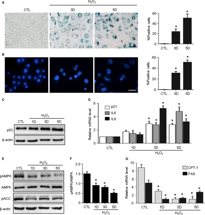 H 2 O 2 induced senescence and AMPK pathway inhibition in NIH 3T3 Cells. Cells were treated with H 2 O 2 and incubated in complete medium without H 2 O 2 for 3‐5 days. CTL means untreated cells. (A) Representative images of SA ‐β‐Gal staining of the cells (left) and percentages of SA ‐β‐Gal‐positive cells in a total of 1000 cells (right). (B) Representative images of SAHF s in cells (left) and percentages of SAHF s‐positive cells in 1000 cells (right). (C) Representative images from immunoblot assays against p53 and β‐actin. (D) Relative fold‐changes in the mRNA levels of the genes encoding p21, IL 6 and IL 8 , as determined by qRT ‐ PCR . (E) Representative images from immunoblot assays against phosphorylated AMPK α ( pAMPK , Thr172), AMPK α1, phosphorylated ACC ( pACC , Ser79), and β‐actin. (F) The ratio of pAMPK to total AMPK was quantified by densitometry based on immunoblot images from three independent experiments. (G) Relative fold‐changes in the mRNA levels of two AMPK target genes ( CPT ‐1 and FAS ) were monitored by qRT ‐ PCR assays. * P