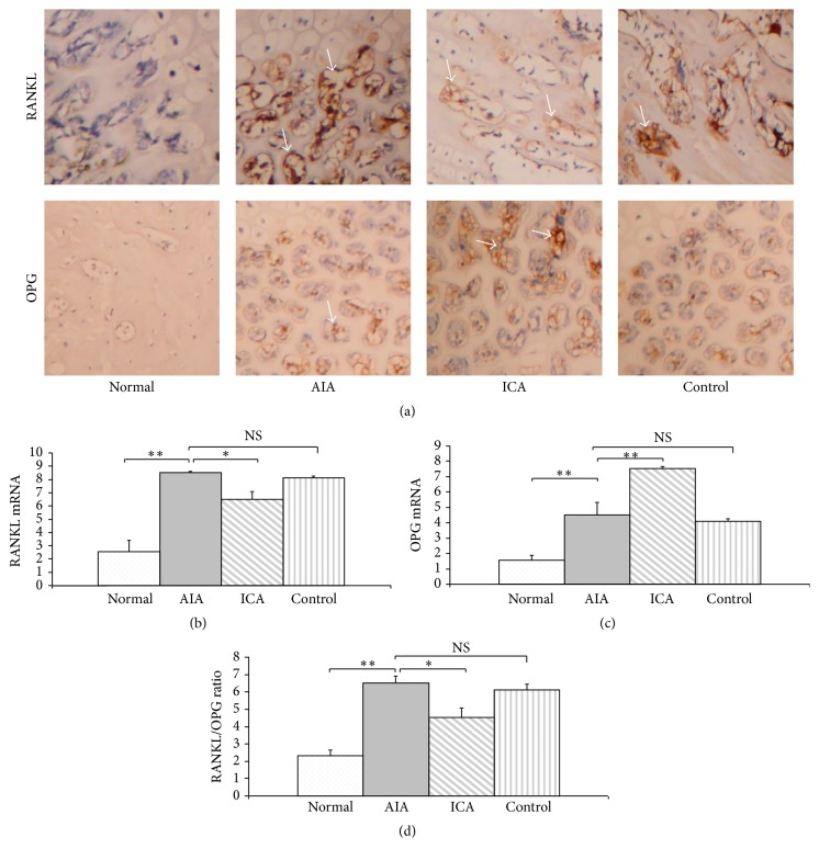 Decreased RANKL and enhanced OPG expression in articular cartilage is associated with icariin therapy. Icariin treatment reduced RANKL and enhanced OPG protein and mRNA expression in subchondral bone as shown by immunohistochemistry (a) and real-time PCR analysis (b, c). RANKL/OPG ratio (d). Results are presented as the mean ± SD. ∗ p
