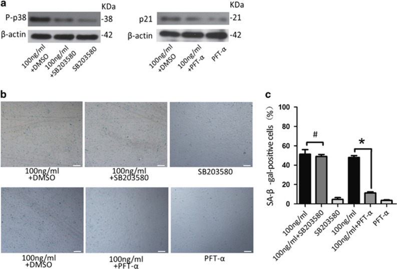 Blocking the p53/p21 pathway inhibits senescence in CPCs treated with leptin. ( a ) The p38 inhibitor SB203580 (10 μ M) significantly decreased the expression of P-p38. The p53 inhibitor PFT- α (20 μ M) significantly decreased the expression of p21. ( b and c ) The percentage of SA- β -Gal-positive cells was significantly decreased after cells were treated with PFT- α and 100 ng/ml leptin but not after cells were treat with SB203580 and 100 ng/ml leptin for 48 h. Error bars represent the mean±S.D. Scale bar, 100 μ m. * P