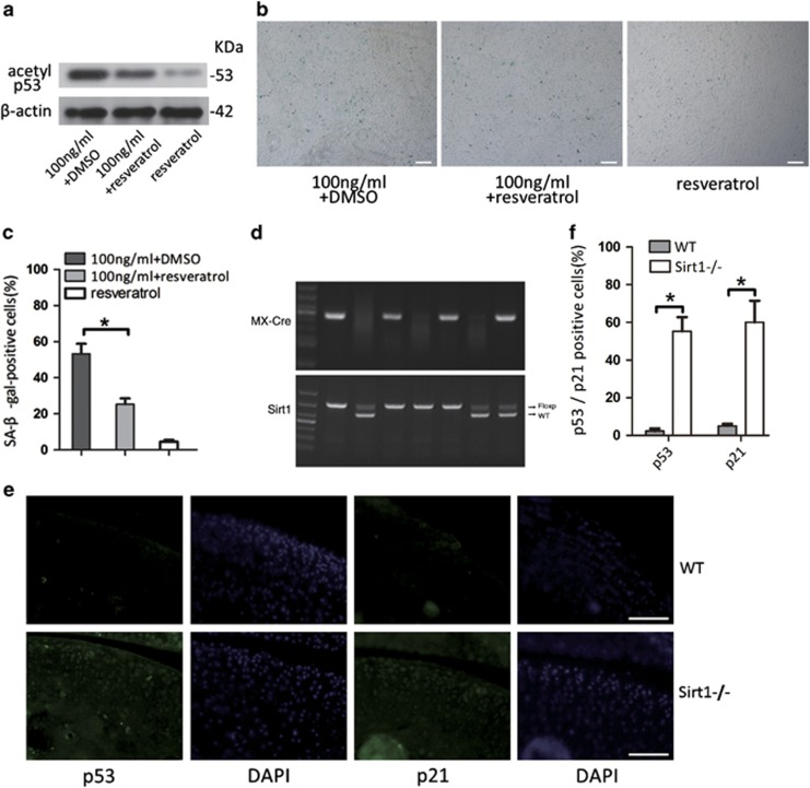 Activating and blocking Sirt1 affected CPCs senescence via the p53/p21 pathway induced by leptin. ( a and b ) Cells were treated with resveratrol and leptin, and the percentage of SA- β -Gal-positive cells was analysed. Cultured CPCs were treated with resveratrol (30 μ M), a Sirt1 pathway agonist, and 100 ng/ml leptin. ( c ) After 48 h of treatment, western blot analysis showed that acetylated p53 expression was inhibited. ( d ) PCR analysis of the genomic Sirt1 locus in heterozygous floxed mice with and without Cre and with or without tamoxifen. ( e and f ) Comparison of the number of p53- and p21-positive cells in wild-type and KO mice. Fluorescence microscopy images show that the p53/p21 pathway was more activated in the articular cartilage tissues of Sirt1 KO mice than in wild-type mice. Scale bar, 100 μ m. Error bars indicate the mean±S.D. * P
