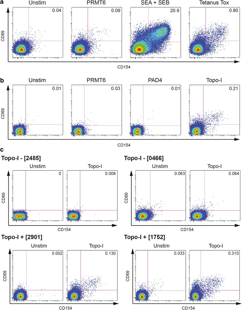 Detection of circulating topoisomerase-I-specific CD4+ T cells by CD154 and CD69 expression and upregulation. After incubation (15 min) with anti-CD40 blocking antibodies, freshly isolated peripheral blood mononuclear cells (PBMCs) were stimulated for 18 h in presence of 5 % autologous serum as indicated below. Gating was set on lymphocytes, singlets, live, CD3+ and CD4+ cells. Numbers in quadrants indicate the percent (%) cells in the parent CD4+ population. a PBMCs from a healthy donor recently immunized with combined tetanus, diphtheria, and pertussis (Tdap) vaccine were stimulated with PRMT6 (negative control), SEA + SEB (positive control) and tetanus toxoid (TT). b PBMCs from a topo-I+ SSc patient were stimulated with PRMT6, PAD4 (negative controls), or topo-I. c Representative experiments on two anti-topo-I-negative and two anti-topo-I-positive SSc patients. The gating strategy for this experiment is shown in Additional file 1 : Figure S1. PRMT6 protein arginine methyltransferase 6, PAD4 human peptidyl arginine deiminase type 4