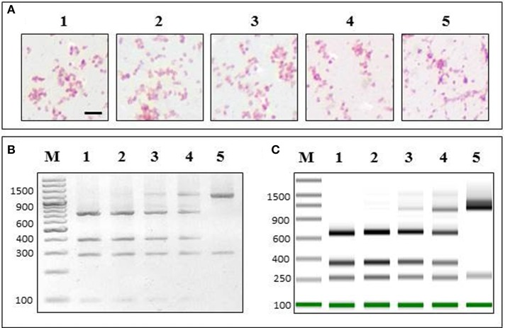 PCR-RFLP specifically detects P. salmonis in a mixed sample . P. salmonis LF-89 and V. anguillarum INTA11 (in the same growth exponential state) were mixed in sterile culture media at different proportions [ P. salmonis LF-89 (%)/V. anguillarum INTA11 (%)]: 1, 100/0; 2, 75/25; 3, 50/50; 4, 25/75; 5, 0/100. (A) The mixed samples were subjected to Gram staining. Bar corresponds to 1.25 5m. (B) 2% agarose gel electrophoresis of PCR-RFLP of the mixed sample using restriction enzyme PmaCI. (C) <t>ScreenTape</t> in the Tape Station 2200 instrument of PCR-RFLP of the mixed sample using restriction enzyme PmaCI. M, O'GeneRuler 100 bp <t>DNA</t> Ladder Plus.