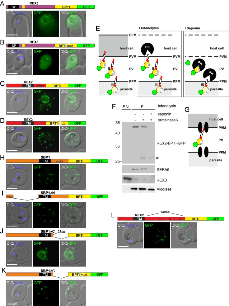 Fusion with the redox sensitive BPTI reveals a second translocation step for TM proteins. ( A-D  and  F-L ) Representative images of live  P .  falciparum  parasites expressing the constructs shown schematically above each panel. Hydrophobic regions (SP, signal peptide; TM, transmembrane domain) are in black, the PEXEL motif in yellow. Numbers refer to amino acids (aa). Red boxes labelled C, additional REX2 C-termini. Interrupted yellow box, mutated BPTI (BPTImut). DIC, differential interference contrast. Size bars: 5 μm. ( E ) Schematic for the protease K (PK) protection assay. Left, intact infected RBC with 3 possibilities (I, II, III) for the location of the fusion construct: I, protein is integral to PVM; II, protein is freely accessible in the PV; III, protein is integral to PPM. Middle, after permeabilisation of the erythrocyte plasma membrane (EPM) with tetanolysin the N-terminus of the construct will be digested if it is in the PVM (I), but remains intact in situation II and III. Right, after permeabilisation of the PVM with saponin, the constructs will be digested if it is in the PVM (I) or the PV (II) but if in the PPM (III), an N-terminally truncated fragment will be generated. Red, exported protein; white box, TM; yellow, BPTI with double cysteine bonds; green, GFP. ( F ) Western analysis of a protease protection assay according to ( E ). Digestion is visible after saponin treatment only. As no protected fragment is detectable, the protein is freely accessible in the PV (situation II). The faint bands (asterisk) represent protein degraded down to GFP. REX2-BPTI-GFP was detected using anti-GFP antibodies. Control for PVM integrity was SERA5 (PV resident), for the PPM aldolase (resident in parasite cytoplasm). Release of REX3 (resident of host cell cytosol) demonstrated efficient permeabilisation of the EPM. The marker is indicated in kDa. ( G ) Schematic of the location of REX2 based on the protease protection assay shown in ( F ). Translocation machines are indicated as two black ellipses. Other features are as in ( E ).