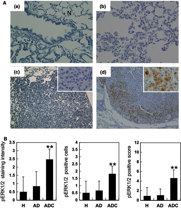 Immunohistochemical expression of phosphorylated extracellular signal‐regulated kinase 1/2 ( ERK1/2) (pERK1/2) in 4‐(methylnitrosamino)‐1‐(3‐pyridyl)‐1‐butanone ‐induced mouse lung tumors. (A) Immunohistochemical staining pattern for pERK1/2 with tumor progression: (a) surrounding normal tissue (N) of a tumor (T); (b) hyperplasia; (c) adenoma, negative for pERK1/2; (d) adenocarcinoma intensely stained for pERK1/2, in both nuclei and cytoplasm. Magnification ×200 (a, b); ×100 (c, d); ×400 inset (c, d). (B) Scores of staining intensity, number of positive cells and their multiplication (positive score) for pERK1/2 in hyperplasia (H), adenoma (AD) and adenocarcinoma (ADC). Shown are averages and standard deviations (error bars). ** P