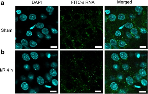 Successful delivery of siRNA into hippocampal CA1 subfield. Fluorescent double staining of FITC-siRNA (green) and DAPI (blue) were observed in the hippocampal CA1 subfield 24 h after injection of 400 nl FITC-siRNA (10 μM), which was distributed in the cytosol of hippocampal CA1 in both sham-control ( a ) and in the rats subjected to TGI-reperfusion for 4 h ( b ). Scale bar: 10 μm. I/R: ischemia/reperfusion
