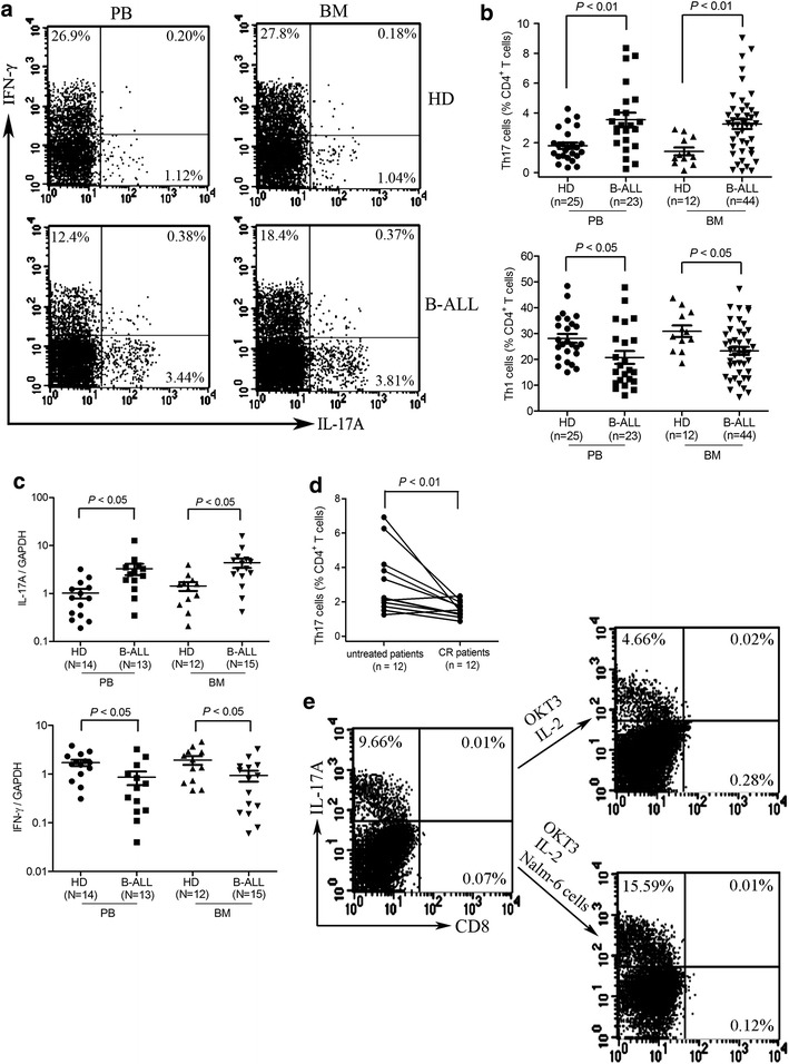 Th17 cells increase with reduced Th1 cells in freshly isolated PBMCs and BMMCs from patients with B-ALL. a PBMCs and BMMCs were separated and stimulated with PMA and ionomycin for 5 h in the presence of brefeldin A and subsequently stained with antibodies against CD3, CD8, intracellular IL-17A or IFN-γ. Flow cytometric analysis was used to determine the Th17 and Th1 cell frequencies. Representative dot plots using matching peripheral blood and bone marrow samples from B-ALL patients and healthy donors (HD) were shown. b Statistical data for frequencies of Th17 and Th1 cells within CD4 + T population were shown. c Total RNA was extracted from CD4 + T cells isolated from B-ALL patients and HDs and reverse transcribed into cDNA and subsequently determined for IL-17A and IFN-γ mRNA expression using quantitative PCR. d The frequencies of Th17 cells were significantly decreased in BM when B-ALL patients achieved complete remission (CR). e CD4 + T cells were cultured with or without Nalm-6 cells for 14 days in the presence of OKT3 plus IL-2 (300 units/ml). Then, frequencies of Th17 cells were determined after stimulation with PMA plus ionomycin