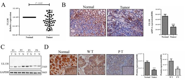 Expression of UL138 is down-regulated in human gastric cancer tissues ( A ) UL138 transcripts were measured by quantitative real-time PCR in the tumor and paired adjacent non-neoplastic (Normal) specimens of 49 HCMV positive gastric cancer samples. The relative expression of UL138 was normalized to GAPDH (2 −ΔΔCt ). P value was obtained by using a paired Student's t -test. * P