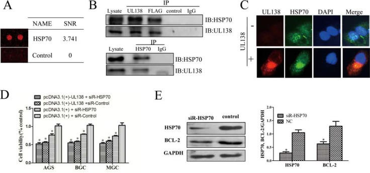 pUL138 interacts with HSP70 protein and blocks its function ( A ) The interaction between UL138 and HSP70 were screened by a human proteome microarray on pure UL138 protein. SNR indicated the average ratio of signal to noise calculated from two duplicated spots. ( B ) HSP70 forms a complex with UL138 protein detected in either UL138 or HSP70 immunoprecipitation (IP). BGC-823 cells were transiently transfected with pcDNA3.1(+)-UL138 tagged with Flag for 48 hr. Protein lysates were assayed for protein-protein interactions by IP using the specific antibodies against the UL138, Flag, or HSP70, and interacting partners were detected by immunoblotting (IB) with antibodies specific to the another protein in the pair, as indicated beside the blot. The pair protein examined in each panel is indicated above the immunoblotting. In each panel, lysates incubated with normal IgG or control serum (as negative control to UL138 specific antibody) served as negative controls. The immunoprecipitation assays are representative of 3 independent experiments. ( C ) Analysis of HSP70 and UL138 co-localization. BGC-823 were seeded on glass coverslips and transfected with pcDNA3.1(+)-UL138 or pcDNA3.1(+) and then incubated for 48 hr. Cells were stained with mouse antibody to pUL138 and rabbit antibody to HSP70. Nuclei were counterstained with DAPI. ( D ) Inhibition of UL138 in cell viability was verified by siRNA-HSP70. Cell viabilities of GC cells at 48 hr post transfection with pcDNA3.1(+)-UL138 (or pcDNA3.1(+)) and HSP70 siRNA (or non-function siRNA (siR-control)) by CCK-8 kits. Results were presented as the mean ± SEM of three individual experiments in each group. ( E ) The protein expression level of Bcl-2 was decreased when transfected with siRNA-HSP70 in BGC cell. Total protein was prepared 48 hr after transfected with HSP70 siRNA (siR-HSP70) or control siRNA (NC). HSP70 and Bcl-2 expressions were analyzed by Western blot followed by quantitated densitometric analysis using ImageJ software. GAPDH served as a loading control.