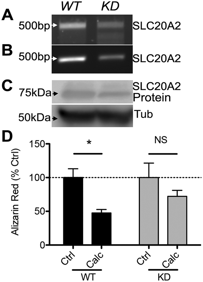 SLC20A2 Knock Down ablates calcitriol-mediated blockade of calcification. SaOs-2 cells were transfected with guide-RNA against SLC20A2 together with Cas-9. ( A ) Gene knockdown was confirmed by PCR amplification of the targeted region and T7 digests to confirm site cutting. Note the reduction in ~500 bp fragments and the appearance of shorter fragments in the CRISPR cells, which is the result of mismatch pairing of the DNA after repair by non-homologous end joining. ( B ) Primers were designed to flank the guide-RNA targeting site and genomic PCR performed on DNA from cells transfected with a donor plasmid (containing a Puromycin resistance gene flanked by homologous arms complimentary to the gene insertion site) with Cas-9. The reduced presence of a ~500 bp fragment is caused by the puromycin insertion, extending the size of the amplicon, thereby producing a diminished band in the PCR reaction. ( C ) Western blot analysis confirmed that protein expression was reduced in CRISPR-treated cells (representative of n = 2). ( D ) Wild type (WT) or SLC20A2 knock down (KD) SaOs-2 cells were treated for 14 days under calcifying conditions with or without calcitriol (Calc). KD cells were no longer protected from calcification by calcitriol (n = 3 independent experiments, *p