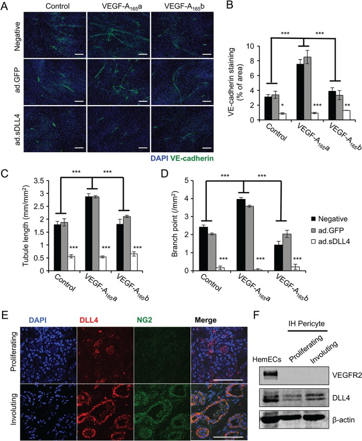 Extra‐endothelial DLL4 signalling inhibits HemECs angiogenesis. (A) HemECs were co‐cultured with normal human dermal fibroblasts and treated with conditioned media from <t>CHO</t> cells, untransduced (negative) or transduced with <t>GFP</t> (Ad.GFP) or sDLL4 adenovirus (ad.DLL4) and VEGF‐A 165 a or VEGF‐A 165 b; the cells were then stained for VE‐cadherin. (B–D) Quantifications of (A): VEGF‐A 165 a, not VEGF‐A 165 b, induced endothelial tube extension, branching and coverage in the assay ( n = 3; p