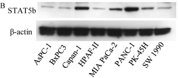 Expression of <t>STAT5b</t> mRNA and protein in pancreatic cancer cells. (A) Quantitative <t>RT-PCR</t> analysis of STAT5b mRNA levels. STAT5b mRNA expressed in all pancreatic cancer cell lines, and the levels were highest in PANC-1 cells, second highest in Capan-1 cells, and lowest in PK-45H cells. In PANC-1 cells, STAT5b mRNA levels were ~13.5-fold higher than in PK-45H cells. (B) Western blot analysis of STAT5b protein levels. STAT5b protein was detected in all cell lines consistent with the RT-PCR results and the levels were highest in PANC-1 cells and second highest in Capan-1 cells.