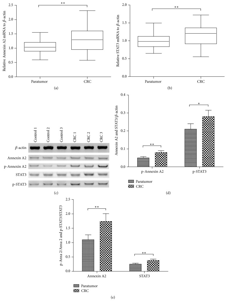 Comparisons of the expression and the phosphorylation of Annexin A2 and STAT3 between the colorectal cancer (CRC) tissue and the paratumor tissue. (a) and (b) The expression of Annexin A2 (a) and STAT3 (b) in mRNA level was assayed in CRC tissues ( n = 35) and in paratumor tissues ( n = 35) by relative qRT-PCR analysis; (c) representative western blot analysis of the expression in protein level and the phosphorylation of Annexin A2 (Tyrosine 23) and STAT3 (Tyrosine 705) in CRC tissues ( n = 15) and in paratumor tissues ( n = 15); (d) relative level of Annexin A2 and STAT3 to β -actin in protein level; (e) relative Annexin A2 and STAT3 with phosphorylation to nonphosphorylated Annexin A2 and STAT3. ∗ and ∗∗ represented p