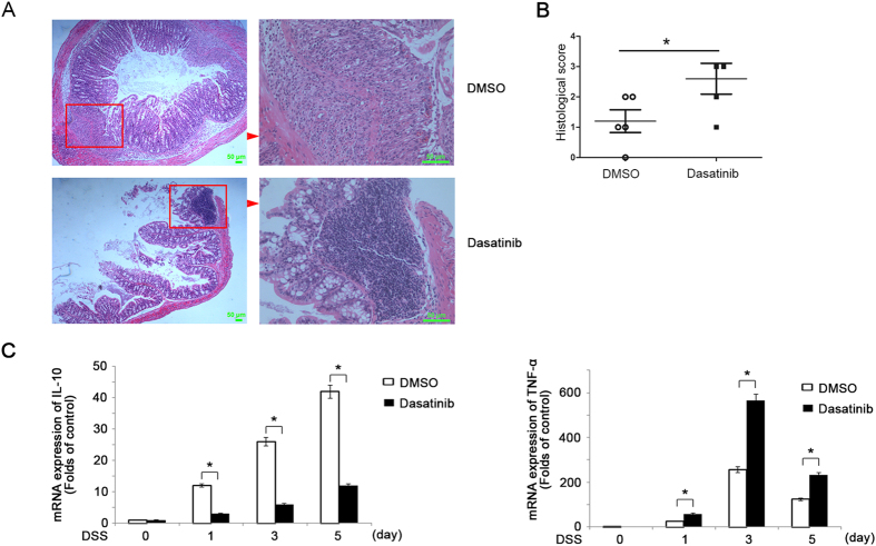 In vivo administration of Src inhibitor dasatinib leads to more severe DSS-induced colitis with decrease of IL-10 expression. ( A , B ) Hematoxylin-eosin staining ( A ) and the histological score ( B ) of the colon from mice treated with DMSO or dasatinib and fed with 3% DSS in water for 7 days. Magnification: Left: ×50 Right: ×200. ( B ) Q-PCR of IL-10(left) and TNF-α (right) in the colon from mice treated with DMSO or dasatinib after fed with 3% DSS in water. Data are representative of three independent experiments with similar results and presented as means ± SD. * P