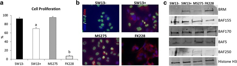 HDAC1 inhibitors reduce cell proliferation and promote restoration of VIM and BRM protein to varying degrees. a SW13- and SW13+ cells as well as SW13- cells treated with either 0.51 μM MS-275 or 2 nM FK228 for 24 h were labeled with EdU for 24 h to determine proliferation rates. b Representative images of two independent experiments performed in triplicate are shown. c Nuclear protein was isolated from SW13- and SW13+ cells, as well as from SW13- cells which had been treated with either 0.51 μM MS-275 or 2 nM FK228 for 24 h and the expression of SWI/SNF protein components were examined by western blot. Total histone H3 was used as a loading control. Data are presented as mean ± SEM. Superscripts indicate statistical significance, p