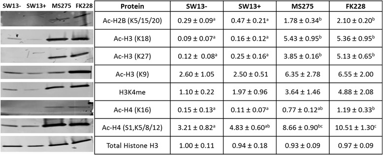 Histone acetylation in stable SW13- and SW13+ subtypes and following treatment with the HDAC inhibitors MS-275 and FK228. Pure histones were isolated from SW13- and SW13+ cells, as well as from SW13- cells which had been treated with either 0.51 μM MS-275 or 2 nM FK228 for 24 h. Histones were separated on tris-tricine gels and transferred to a PVDF membrane for blotting and assessment of histone modifications. Total histone H3 was used as a loading control. Data are presented as mean ± SEM. Superscripts indicate statistical significance, p