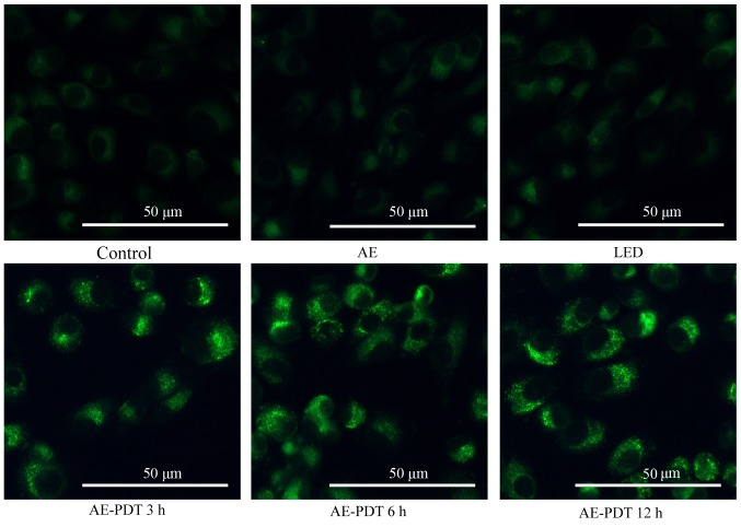 Autophagic morphological changes were evaluated by fluorescence microscopy using monodansylcadaverine (MDC) staining. MG-63 cells were treated with 10 µ M aloe-emodin (AE) for 6 h and then irradiated with light (4.8 J/cm 2 ). At 3, 6 and 12 h after irradiation, autophagic vacuoles were detected using MDC staining.
