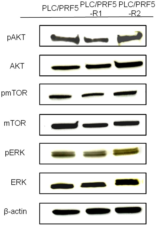 Expression of AKT/pAKT, <t>mTOR/pmTOR,</t> and <t>ERK/pERK</t> in sorafenib-resistant cells The expression of pAKT, AKT, pmTOR, mTOR, pERK, and ERK in PLC/PRF5, PLC/PRF5-R1 and PLC/PRF5-R2 cells wasexamined by Western blot analysis. β-actin was used as an internal control.