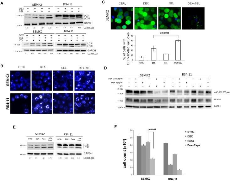 MEK1/2 inhibitor, selumetinib, intensifies DEX induced LC3 conversion, MDC staining and GFP-LC3 relocalization in GC-resistant SEMK2 ALL cells. (A) GC-sensitive (RS4;11) and GC-resistant (SEMK2) cells were incubated with DEX (0.05 μg/mL) in the presence or absence of MEK1/2 inhibitor, selumetinib (SEL, 200 nM) for 24h. When indicated, cells were pretreated for 3 h with 50 μM or 100 μM of chloroquine (CQ). Thereafter, LC3 processing was assessed by immunoblotting. Densitometric analyses of LC3II/I are indicated below the blots. (B) SEMK2 and RS4;11 cells were cultured as described above for 24h, stained with MDC (50 μM) and analyzed by fluorescence microscopy. (C) SEMK2 cells were stably transduced with GFP-LC3 and incubated with DEX, SEL or combination of DEX+SEL for 24h. GFP-LC3 relocalization from diffuse cytoplasmic in control cells to a massive dotty pattern in DEX+SEL treated cells indicates LC3 recruitment to autophagosome membranes. In the lower panel, the percentage of cells with GFP-LC3 dots was quantified by counting the number of cells with > 3 dots and divided by a total number of GFP positive cells in 5 random non-overlapping fields. Pictures were taken at 630 × magnification. P value was calculated using Student's t-test. (D) Induction of autophagy markers by the DEX and SEL co-treatment involves mTOR suppression. SEMK2 and RS4;11 cells were incubated with DEX in the presence or absence of SEL and lysed. 4E-BP1 phoshorylation status was assessed by immunoblotting. (E) GC-resistant (SEMK2) and—sensitive (RS4;11) cells were incubated with mTOR inhibitor rapamycin (100nM) in the presence or absence of DEX (0.05 μg/mL) for 24h. Thereafter, LC3 processing was assessed by immunoblotting and quantified. Densitometric analyses of LC3II/I are indicated below the blots. (F) Cells were treated as in (E) for 72h. Thereafter, cell numbers were assessed by counting 6 independent fields in Burker's chamber. Data represent two independent experiments. P-values were ca
