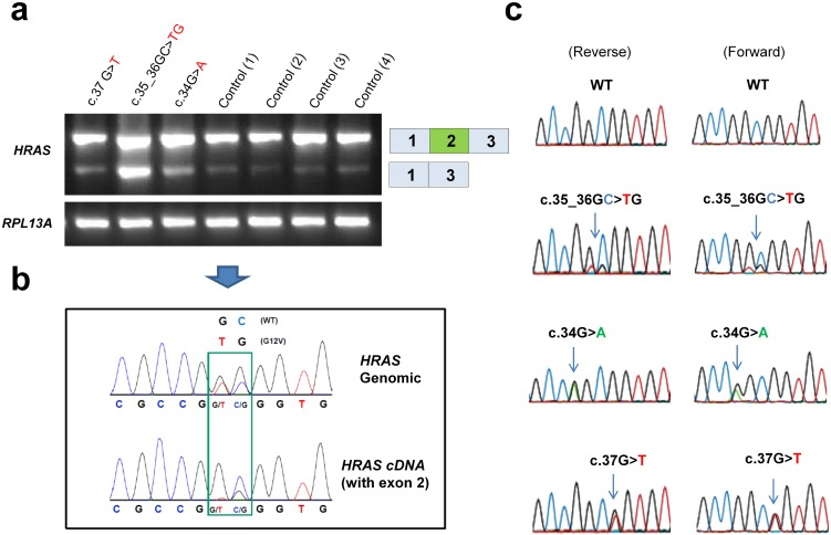 Analysis of patient DNA and cDNA. ( a ) RT-PCR analysis of lymphocyte cDNA from four unrelated controls and three individuals with Costello syndrome (CS), caused by heterozygosity for c.34G > A, c.37G > T and c.35_36GC > TG (index individual), revealed pronounced exon 2 skipping in the index individual. The low levels of exon 2 skipping observed in controls and individuals with CS with other genotypes indicates that exon 2 is inefficiently spliced. RPL13A was amplified as a control. ( b ) Comparison of sequence analysis of genomic DNA and lymphocyte cDNA from the index individual, shows that wild type and c.35_36GC > TG alleles are equally present in genomic DNA, but not in full length cDNA. ( c ) Chromatograms from sequencing of the full length band (exon 2 inclusion) from lymphocyte cDNA in forward and reverse direction from individuals with CS heterozygous for c.35_36GC > TG, c.34G > A and c.37G > T.