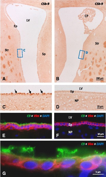 Detection of C5b-9 complex and C9 on the ependymal epithelium of rats injected with NA. a – d Immunohistochemistry using anti-C5b-9 showing the injected ( a , c ) and the contralateral ( b , d ) ventricles. Two hours after NA injection, a positive label could be observed on the ependymal surface of the injected ventricle ( c ), which was absent in the contralateral one ( d ). e – g Cryostat 10-μm sections double labeled with anti-C9 ( green ), anti-vimentin ( red ), and the nuclear stain DAPI ( blue ). The ependymal cells of the injected ventricle showed C9 deposits on the apical surface and cilia ( e and g ) that were not present in the contralateral ventricle ( f ). LV lateral ventricle, DAPI , 4,6-diamidine-2-phenylindole dihydrochloride, Ep ependyma, NP nervous parenchyma, CP choroid plexus, Str striatum, Sp septum. ( Arrows ) Damaged cells