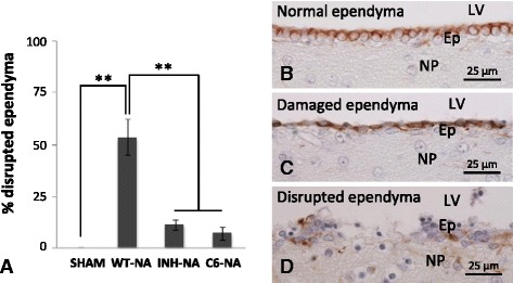 Quantification of ependymal epithelium disruption in different experimental conditions. a The graph shows the proportion of disrupted ependyma relative to the total ependymal perimeter measured in histological sections. Four experimental situations were analyzed: sham-operated rats ( SHAM ), NA-injected wild-type rats ( WT-NA ), NA-injected C5-inhibitor-treated rats ( INH-NA ), and NA-injected C6-deficient rats ( C6-NA ). Photographs show the appearance of intact ( b ), damaged ( c ), and disrupted ( d ) ependymal epithelium immunostained with anti-vimentin. NA-injected WT rats display 53.5 ± 8.5 % of ependymal epithelium disruption. However, in rats with the complement system inhibited (IHN-NA and C6-NA), this proportion decreases significantly (11.3 ± 2.5 and 7.1 ± 3.3, respectively). Bars represent the mean ± SEM. Different treatments were compared by one-way ANOVA ( F (3,11) = 25,872, P