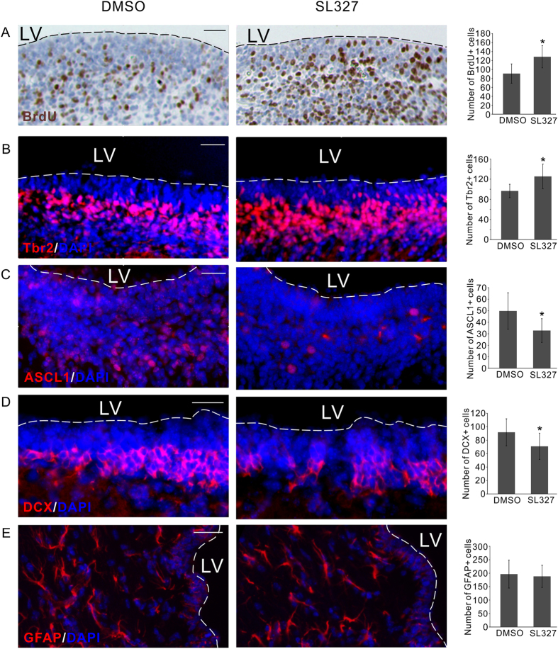 ERKi regulates NP cells i n vivo in the developing rat brain. ( A ) Injection of brain permeable SL327 compound resulted in more BrdU+ proliferative cell in the VZ/SVZ of the embryonic brain. ( B ) The number of Tbr2+ intermediate progenitor cells was also significantly increased by SL327 injection. ( C ) The number of ASCL1+ cells was significantly reduced by SL327 injection. ( D ) The number of DCX+ neuroblasts was also significantly reduced by SL327 injection. ( E ) The number of GFAP+ astrocytes was not affected by SL327 injection. In all the panels representative sections were shown in the left two images, the quantification of the number of positive cells was shown in the right bar graph. All bar graphs represent Mean ± s.d., n = 6. LV, lateral ventricle. *P