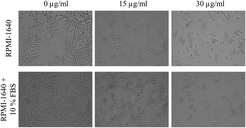 Effect of sophorolipid on C. albicans hyphal growth. C. albicans cells were grown in RPMI-1640 medium (upper panel) and RPMI-1640 containing 10% FBS (lower panel) at the indicated concentration of SL at 37 °C for 5 hrs. At the end of incubation an aliquot was withdrawn from each sample and photographed at 100× magnification.