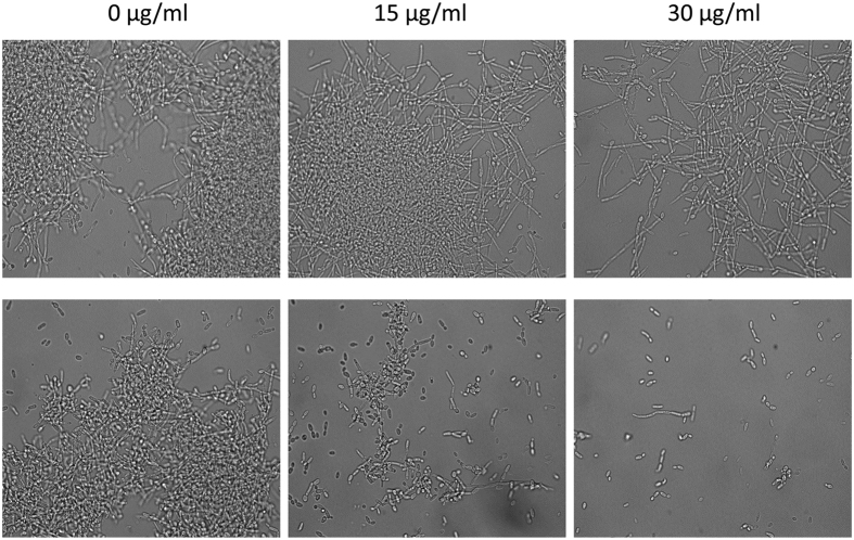 Effect of sophorolipid on C. albicans mature hyphae. C. albicans cells were grown in <t>RPMI-1640</t> containing 10% FBS for 5 hrs. After that mature hypha were treated with indicated concentrations of SL for time point zero (upper panel) and 5 hrs (lower panel) at 37 °C. At the end of incubation an aliquot was withdrawn from each sample and photographed at 60× magnification.
