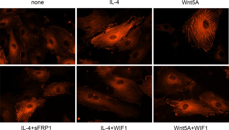 Stress fiber formation in IL-4 treated HCAEC. Live actin-RFP staining showing the formation of actin stress fibers in HCAEC treated with IL-4 or Wnt5A in the absence or presence of sFRP1 and WIF1. Expression of de novo synthesized RFP-actin after transfection as outlined in methods was visually observed up to 24 h. Photomicrographs of stress fiber formation were taken randomly at 12 h after stimulation with IL-4 and Wnt5A alone or in the presence of sFRP1 and WIF1 using Zeiss Axio Observer.Z1 equipped with AxioCam MRm digital camera and ZEN 2012 software. Original magnification, 400×. Independent identical experiments in triplicates were repeated at least three times, with analogous results.