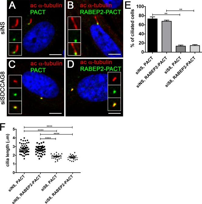 RABEP2-PACT does not rescue siSDCCAG8 ciliogenesis defect. (A,B) hTERT-RPE1 cells were transfected with non-specific siRNA (siNS) and 24 hours later transfected with EGFP-PACT (A) or EGFP-RABEP2-PACT (B) constructs. Either of the tagged proteins localized to the centrosome and were detected with anti-GFP antibody (green). Ciliogenesis (acetylated-α-tubulin, red) was not affected in either of the situations. (C,D) h TERT-RPE1 cells were transfected with siSDCCAG8 and 24 hours later transfected with EGFP-PACT (C) or EGFP-RABEP2-PACT (D) constructs. Although, the tagged proteins localized to the centrosome (green), they failed to rescue the ciliogenesis defect (acetylated α-tubulin, red) in SDCCAG8 knockdown cells. Scale bars: 4 μ m. (E) Quantitation of the percentage of ciliated cells in (A, B, C and D), demonstrates that over expression of the EGFP-PACT or EGFP-RABEP2-PACT construct does not affect normal ciliation in siNS hTERT-RPE1 cells. Moreover, EGFP-RABEP2-PACT construct fails to rescue the ciliation defect in SDCCAG8 depleted cells (**p = 0.0068). Error bars, SEM. (F) We measured the length of cilia in EGFP-PACT and EGFP-RABEP2-PACT overexpression cells to examine whether it was affected. There was no significant difference in the length of cilia between siNS cells expressing EGFP-PACT and EGFP-RABEP2-PACT (73.08 ± 4.417 μ m, n = 3, vs. 67.80 ± 2.446 μ m, n = 3, p = 0.41). Similarly, the cilia length was uncorrected by the overexpression of EGFP-PACT and EGFP-RABEP2-PACT in siSDCCAG8 cells (13.36 ± 2.194 μ m, n = 3 vs. 14.58 ± 2.083 μ m, n = 3, p = 0.72). Error bars, SEM.