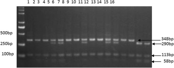 The electrophoresis of PCR- Taq I-RFLP for NR1H3 exon 5-A201C in pigs. Note: The individual with 348 and 113 bp fragments had genotype AA (lanes 1, 2, 3, 6, 7, 9, 10, 13, 14), the individual with 348, 290, 113, and 58 bp fragments had genotype AC (lanes 4, 5, 8, 11, 12), and the individual with 290, 113, and 58 bp fragments had genotype CC (lanes 15, 16)