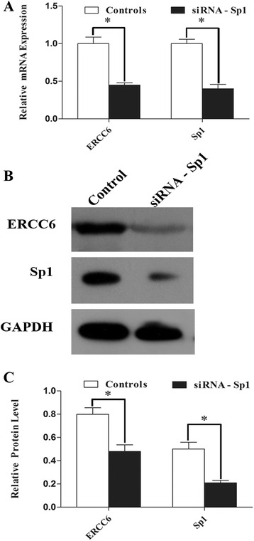 Knockdown of endogenous Sp1 decreased the mRNA expression and protein level of ERCC6 and Sp1 in 239T cells. a Detection of ERCC6 and Sp1 mRNA expression by qRT-PCR. Values represent mean ± SD. * P