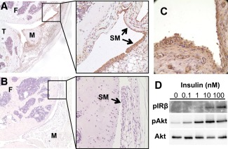 Insulin receptors (IRs) are expressed in mouse and human synovium and are functional in human fibroblast‐like synoviocytes (FLS). A and B, Immunohistochemical staining demonstrates abundance of IRs in a representative knee joint section from a C57BL/6 mouse (A) , in contrast to a representative knee joint section used as negative control (no primary antibody) (B) . Boxed areas in left panels are displayed at higher magnification in right panels. Original magnification × 50 in left panels; × 200 in right panels. C, Immunohistochemical staining demonstrates abundant expression of IRs in human synovium obtained from a patient with osteoarthritis (OA) undergoing total knee arthroplasty. Original magnification × 200. D, Isolated human OA FLS were treated without or with insulin at various concentrations for 5 minutes. IRβ autophosphorylation and phosphorylation of Akt (Ser 473 ) were assessed by Western blotting in immunoprecipitates and lysates, respectively. F = femur; T = tibia; M = meniscus; SM = synovial membrane.