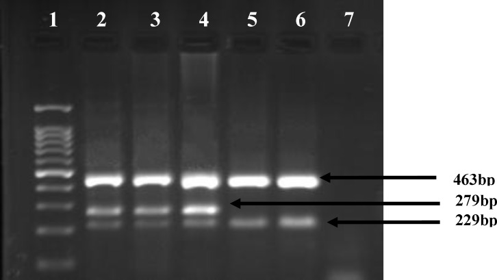 Agarose gel analysis for the detection of JAK2V617F mutation in genomic DNA by ARMS- PCR. The 463- bp fragment was amplified as a control band for all PCR products. wild-type specific primers produce a fragment of 229- bp and mutant specific primers generate a fragment of 279-bp. Lane 2, 3 and 4 samples from patients with mutation; lane 5 sample from patients without mutation; lane 6 is a healthy person, lane 7 is negative PCR control. Lane 1 is 100-base pair (bp).