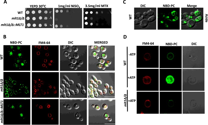 Mlt1p levels are required to maintain growth in the presence of NiSO 4 , methotrexate and for accumulation of NBD-PC into the vacuolar lumen ( A ) Comparison of growth by spot dilution assays of C. albicans WT (SC5314), mlt1 Δ/Δ and mlt1 Δ/Δ ::MLT1 cells. A 5-fold serial dilution of each strain was spotted on to NiSO 4 and MTX at the indicated concentrations, in YEPD agar plates and grown for 48 h at 30°C. ( B ) Deletion of MLT1 results in the loss of accumulation of NBD-PC in the vacuolar lumen. C. albicans WT (SC5314), mlt1 Δ/Δ and mlt1 Δ/Δ ::MLT1 cells were grown to mid-exponential phase and incubated with NBD-PC. After incubation, cells were washed and stained with FM4-64. Samples were prepared for microscopy and photographed under a confocal microscope. Scale bar, 10 μm. ( C ) NBD-PC accumulation into the vacuolar lumen of C. albicans is energy-dependent. Sodium azide treatment was given to mid-exponential-phase WT C. albicans (SC5314) cells before their incubation with NBD-PC. The cells were photographed under a confocal microscope. ( D ) NBD-PC accumulation into the vacuolar lumen is energy-dependent. Vacuoles were isolated from WT and mlt1 Δ/Δ mutant C. albicans using a Ficoll gradient ultracentrifuge-based method. Equal amounts (25 μg) of purified vacuolar vesicles were then incubated at 30°C for 30 min in buffer containing 10 μM NBD-PC and 10 μM FM4-64. A transport assay was carried out under two conditions: one in the absence of energy source ATP and another in the presence of 5 mM ATP. After incubation, samples were washed with ice-cold Tris/sucrose buffer containing 3% fatty-acid-free BSA and observed under a confocal microscope. In the presence of ATP, the isolated vacuoles from WT C. albicans showed NBD-PC accumulation. There was no NBD-PC accumulation in the absence of ATP in WT cells and in vacuoles isolated from mlt1 Δ/Δ mutant. DIC, differential interference contrast.