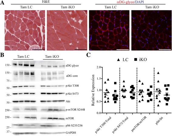 Akt/mTOR signaling is unchanged following loss of αDG glycosylation. a Representative images of littermate (Tam LC) or inducible knockout (Tam iKO) iliopsoas. H E and αDG glyco images are shown. Scale bar = 100 μm. b Western blot analysis of solubilized skeletal muscle from hind limbs of Tam LC or Tam iKO mice. c Quantification of Akt phosphorylation at T308 and S473, mTOR phosphorylation at S2448, and S6 phosphorylation at S235/236 relative to total Akt, mTOR, and S6 protein, respectively, as a measure of protein activation. Data are presented as mean ± SEM. n = 9 per group