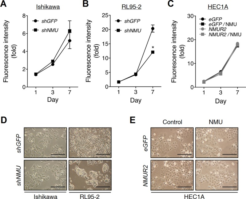 Effects of NMU knockdown on the cell growth and morphology of endometrial cancer cells ( A ) Ishikawa and ( B ) RL95-2 cells with or without NMU knockdown were cultured in the growth medium. ( C ) HEC1A cells with eGFP- or NMUR2 -overexpression were cultured in the growth medium supplemented without or with 100 nM NMU. The growth rates were compared using the AlamarBlue assay. The fluorescence value of the cells on day 0 (D0) served as the one-fold control. Data are shown as the mean ± SD. * p