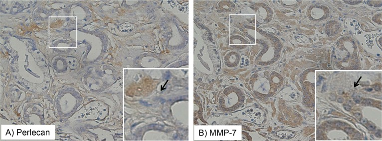 Perlecan and MMP-7 stain expression intersect in tissue <t>microarray</t> Staining patterns of perlecan ( A ) and MMP-7 ( B ) are shown in the same TMA tissue specimen in Gleason grade 3 tissue. The perlecan or MMP-7 antibody-detected stain is brown and the hematoxylin nuclear counterstain is blue. Perlecan and MMP-7 positively staining regions are adjacent to one another, but not overlapping, as indicated by the arrows.